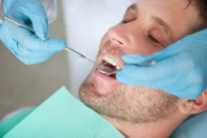 Протезирование зубов в Киеве Цена