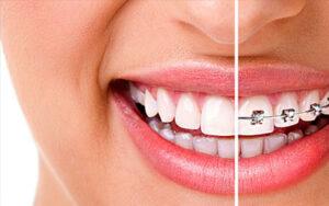 Ортодонтия в Киеве лечение зубов