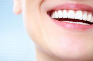 Отбеливание зубов в Киеве недорого